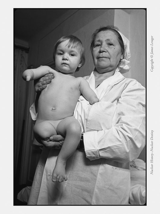 A Ukrainian child born with multiple gross birth defects, photographed in a children's home in 1991. This girl was born shortly after the Chernobyl disaster.